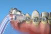 Imagem de Bico Ortodôntico Waterpik - Orthodontic Tip